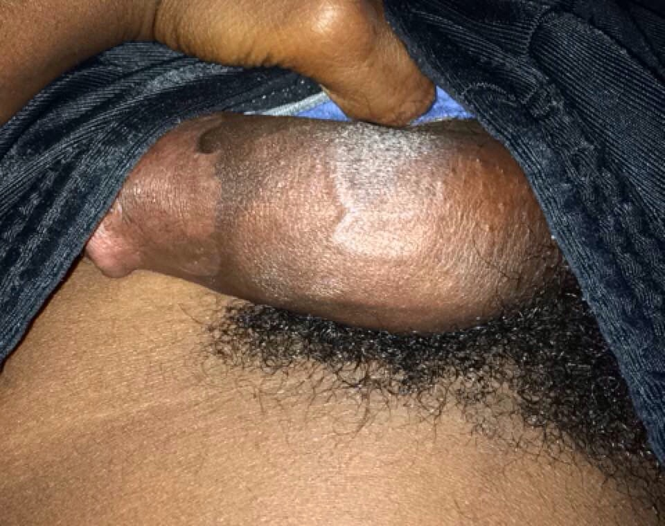 Black Shemale With Hairy Dick 22